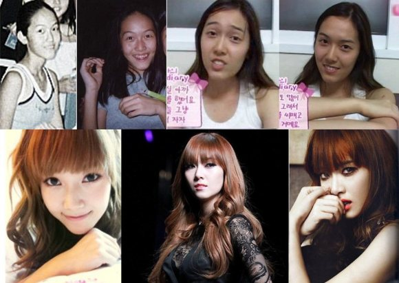"NEWS] SNSD's ""Plastic Surgery"" has unveiled!!! (Yoona, Yuri, Jessica"