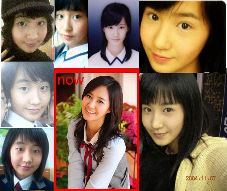 NEWS  SNSD   s    Plastic Surgery    has unveiled     Yoona Yuri    Yuri Snsd Before And After
