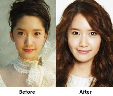 NEWS  SNSD   s    Plastic Surgery    has unveiled     Yoona Yuri    Yoona Plastic Surgery Nose