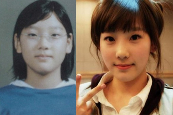 News Snsd S Plastic Surgery Has Been Unveiled Yoona Yuri